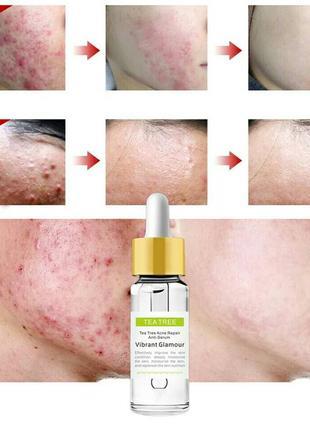 Серум для лица чайное дерево tea tree acne repair anti-serum vibrant glamour от воспалений2 фото