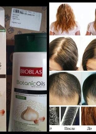 Шампунь от выпадения волос, bioblas botanic oils garlic unice