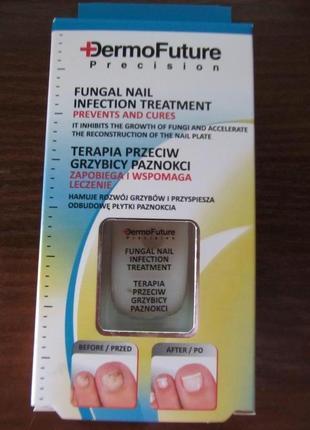 Курс лікування проти грибка нігтів