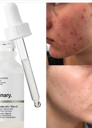 Сыворотка для проблемной кожи niacinamide 10% + zinc 1%