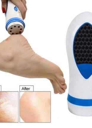 Универсальный прибор для ухода за ногами и стопами ног, педи спин, pedi spin