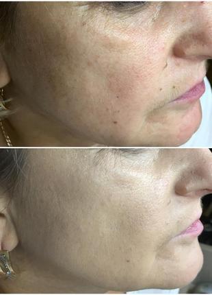Акция! тональный крем для нормальной и жирной кожи matting make-up №3. франция.6 фото