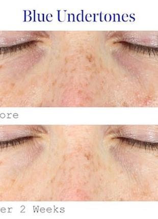 Пробник серум murad vitamin c dark circle correcting eye serum3 фото