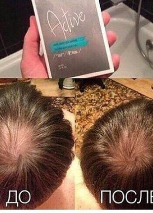 Сыворотка для роста волос ,против выпадения