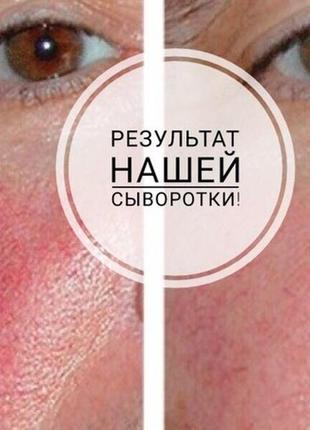 Сыворотка против пигментации и купероза2
